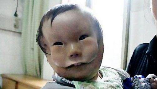 малыш с двумя лицами