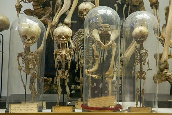 Музей Дюпюитрена. Франция