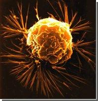 Медицина и нанотехнологии: Раковые клетки теперь будут... взрывать!