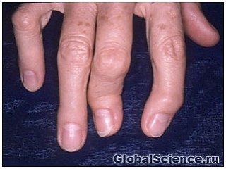 В чем причина развития острых остеоартритов?