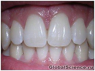 Учёные вырастили здоровые зубы с корнями из клеток тканей дёсен