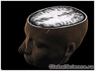 Сканування мозку дозволило вченим заглянути в уяву людини