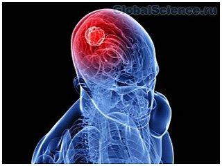 Найден молекулярный механизм опухоли мозга