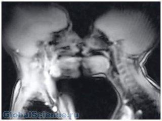Ученые из Великобритании показали, как выглядит секс в аппарате МРТ