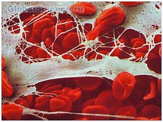 Ученые из США обнаружили, что клетки иммунной системы атакуют мозг после травмы головы