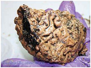 При раскопках в обнаруженном древнем черепе оказался мозг