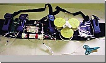 Разработана модель переносной искусственной почки