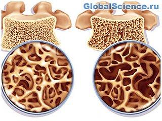 Новые результаты в лечении остеопороза приносит работа новосибирских ученых