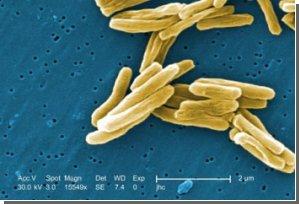 У туберкулеза более древние корни, считают ученые