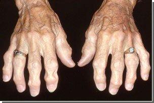 Новые исследования костных тканей: методы лечения остеопороза под сомнением