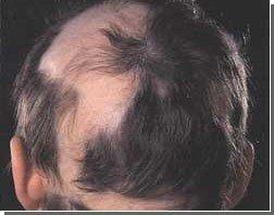 Инфекционные заболевания зубов могут вызвать выпадение волос