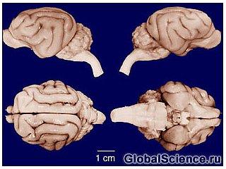 """""""Эффект победителя"""" изменяет строение мозга"""