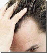 Новые результаты поисков причин выпадения волос