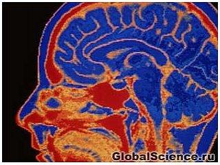 10 поразительных фактов о человеческом мозге