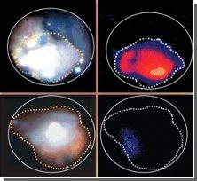 Диагностика рака толстой кишки на ранних стадиях: можно обойтись без биопсии!