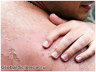 Причина солнечного ожога - испорченные РНК