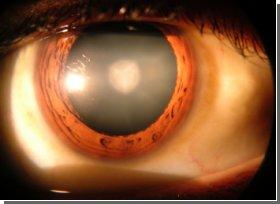 Ученые выяснили, как формируется катаракта