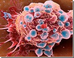 """Раковые клетки распространяются, """"пуская пузыри"""""""