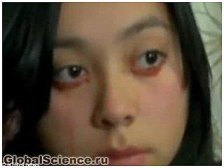 Девушка, плачущая кровавыми слезами, озадачила врачей