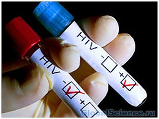 Американскими учеными зарегистрирован случай полного излечения от ВИЧ-инфекции