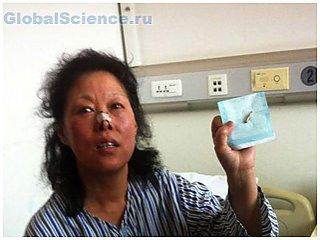 Китайская женщина 48 лет прожила с пулей в голове
