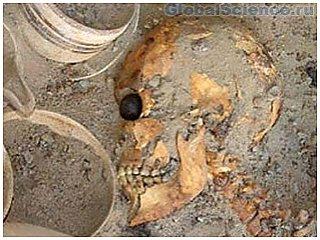 В Иране археологи нашли древнейший в мире искусственный глаз
