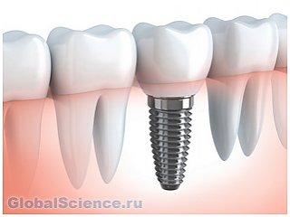 Созданы подвижные зубные имплантаты