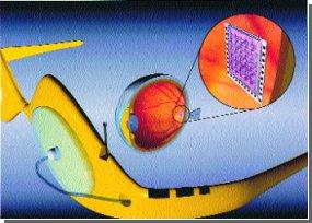 Штучне око: нове у розробці бездротових імплантатів