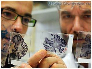 У 600 тысяч жителей Штатов, неправильно диагностирован подтип Альцгеймера