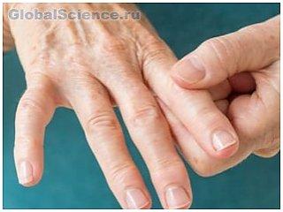 Медиками найдены необычные симптомы при ревматоидном артрите