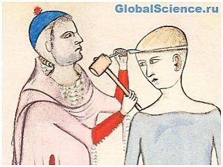Трепанация в древности проводилась не только для лечения