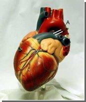 Новое смертельное генетическое заболевание сердца